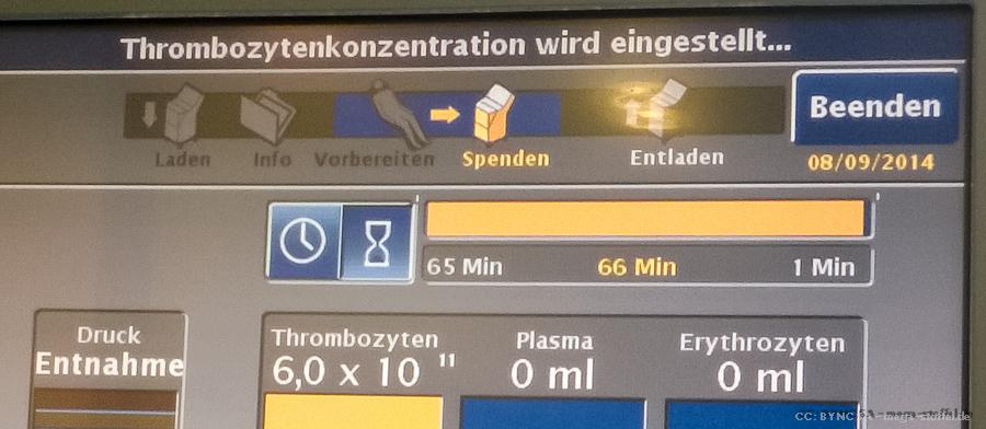 Thrombozyten-Süenden-Bildschirm